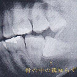 骨の中の親知らず、レントゲン写真例